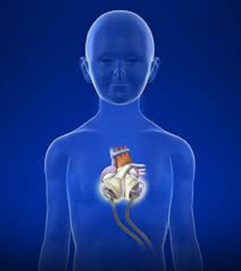 Total Artificial Heart (TAH) Industry, 2018 Market ResearchReport