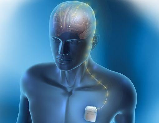Neurostimulation Devices