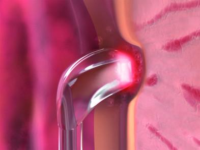 Gesundheitszentrum Bergmannstraße in Berlin: Moderne BPH-Lasertherapie von biolitec bei Dr. Hasan Igde von Patienten sehr gut angenommen