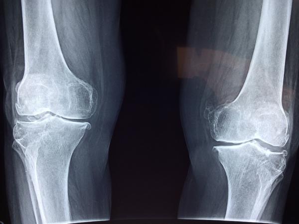 Internationaler Tag der Radiologie am 8. November: Röntgeninstitut Düsseldorf informiert über die Bedeutung der radiologischen Bildgebung